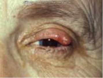 adenocarcinoom