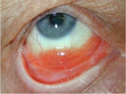 kanker op het ooglid afbeelding