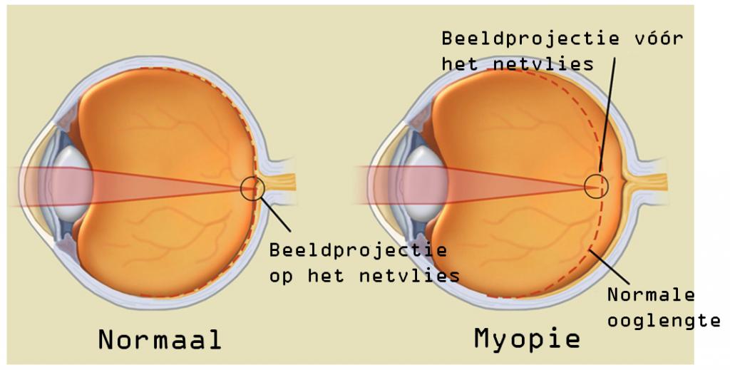 cea mai rea vedere picături oftalmice de acuitate vizuală