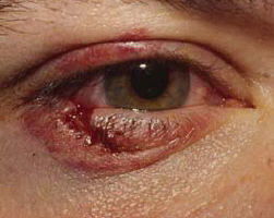 pijnlijk ooglid boven